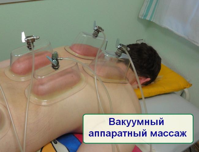 Вакуумно баночный массаж шеи